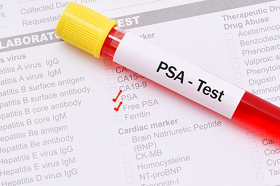 To PSA test or not to PSA test: That is the discussion featured image