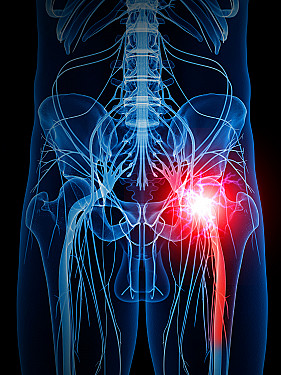 Taming the pain of sciatica: For most people, time heals and less is more featured image