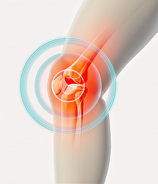 The mysterious rise in knee osteoarthritis featured image