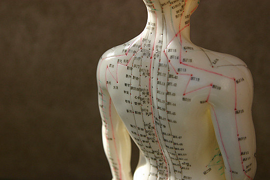 Acupuncture for headache featured image