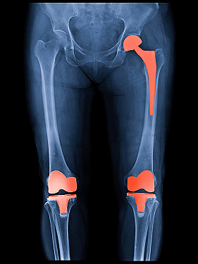 How long will my hip or knee replacement last? featured image