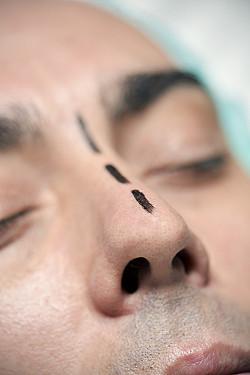Thinking about rhinoplasty? featured image