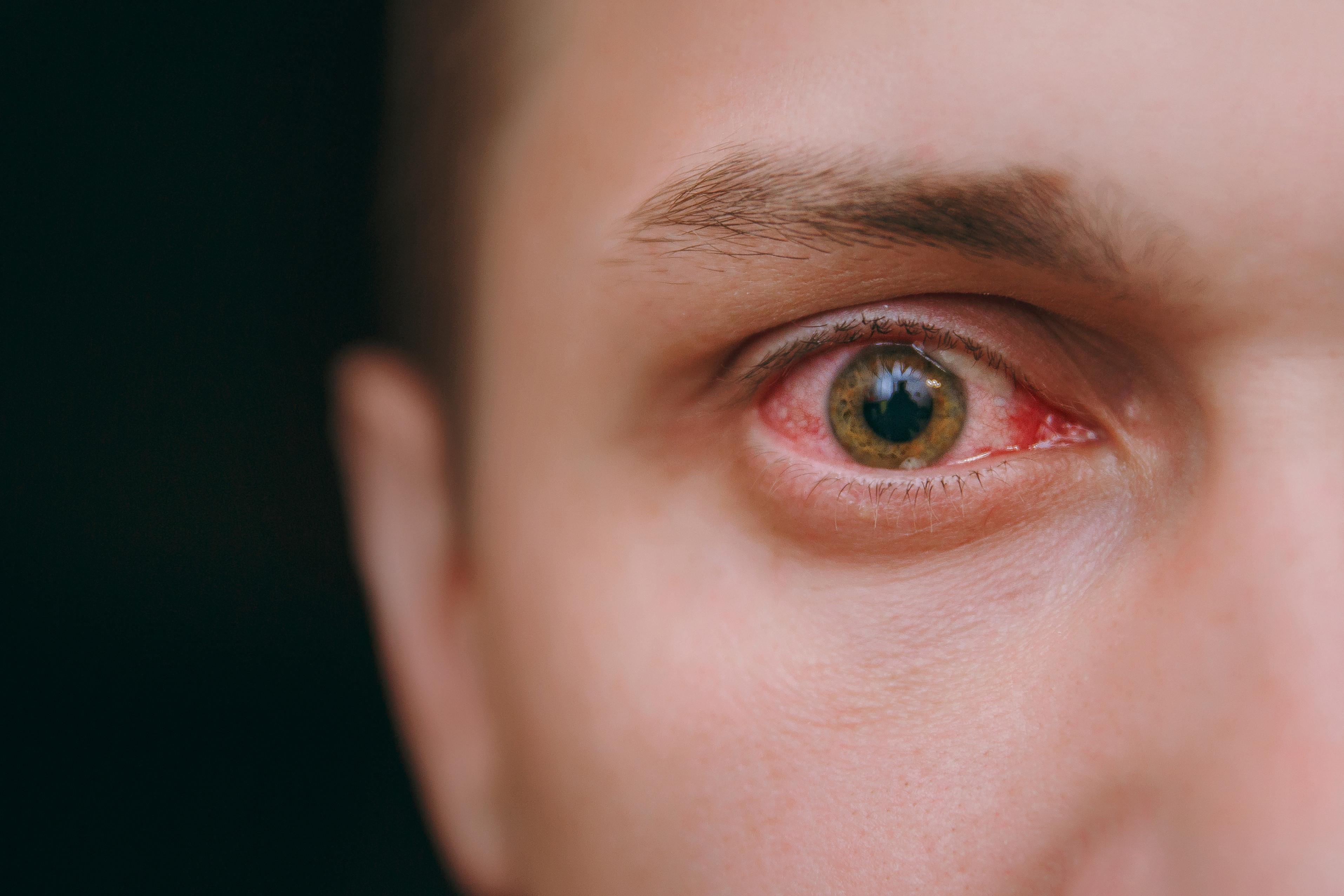 eye-infection-redness