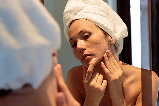 Adult acne: Understanding underlying causes and banishing breakouts featured image