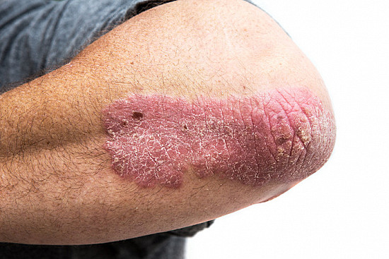 Psoriasis and cancer: What's the link? featured image
